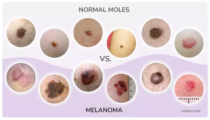 melanoma-karkinos-dermatos-xeirourgos-charisis-christos