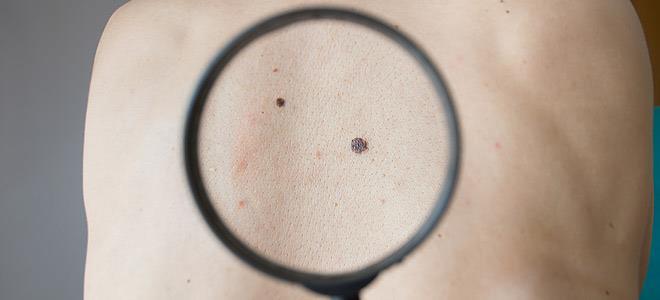 melanoma-plati