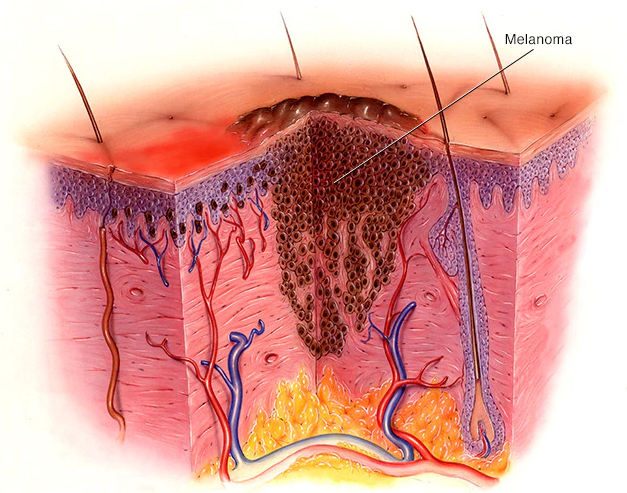 xeirourgos-thessaloniki-charisis-melanoma